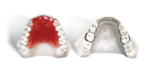 upper and lower orthodontic retainer