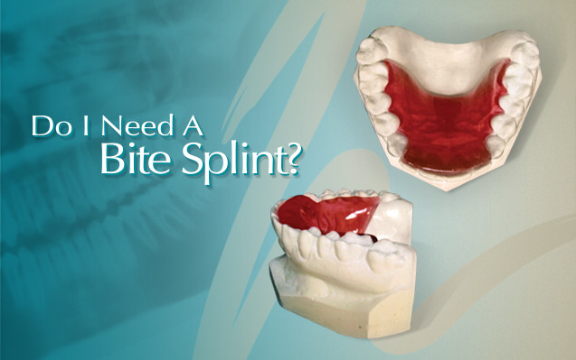 Orthodontic Bite Splint