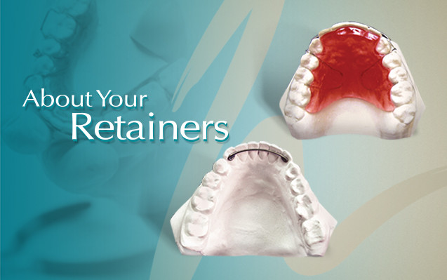 Orthodontic Retainer for Braces Treatment